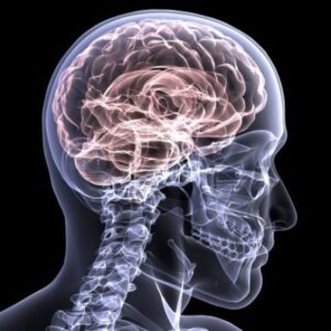 Females Not Only Have Increased Risk of Concussions But More Severe Concussions